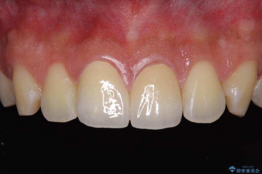 前歯2本のセラミック治療 後