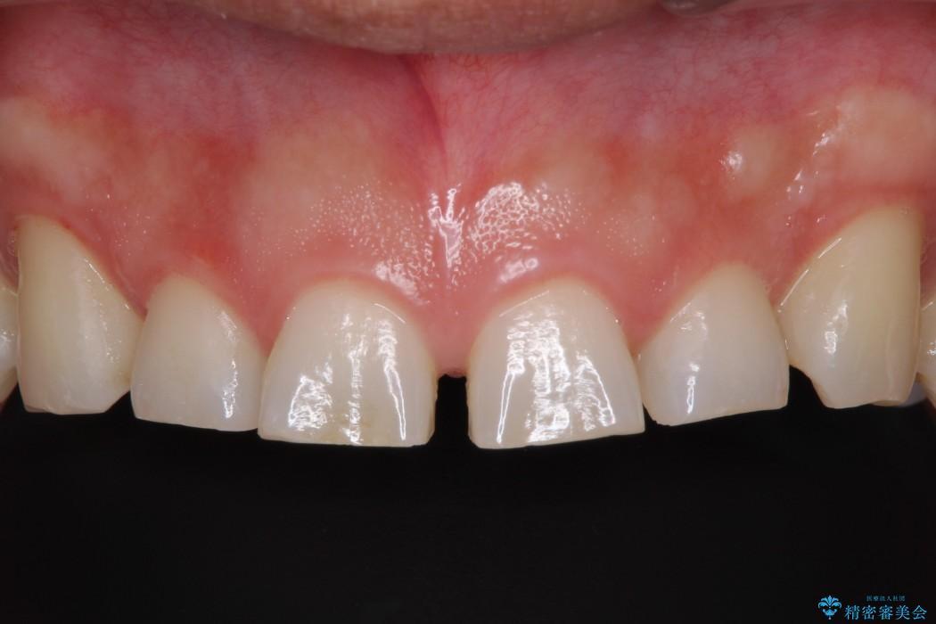前歯2本のセラミック治療 前
