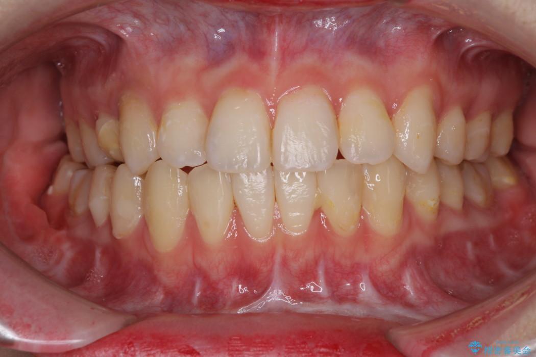 上下前歯16本のセラミック治療 前