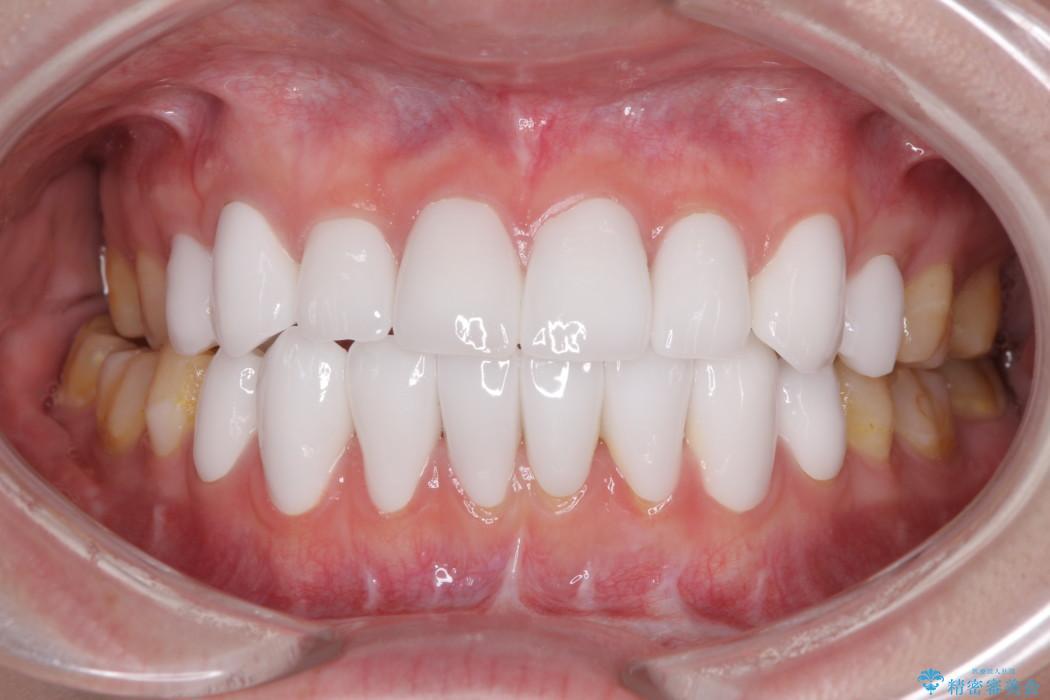 上下前歯16本のセラミック治療 後