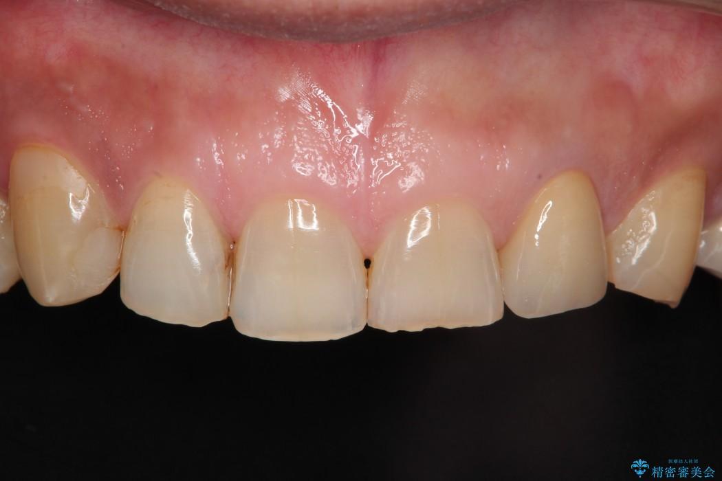 前歯1本のセラミック治療 後