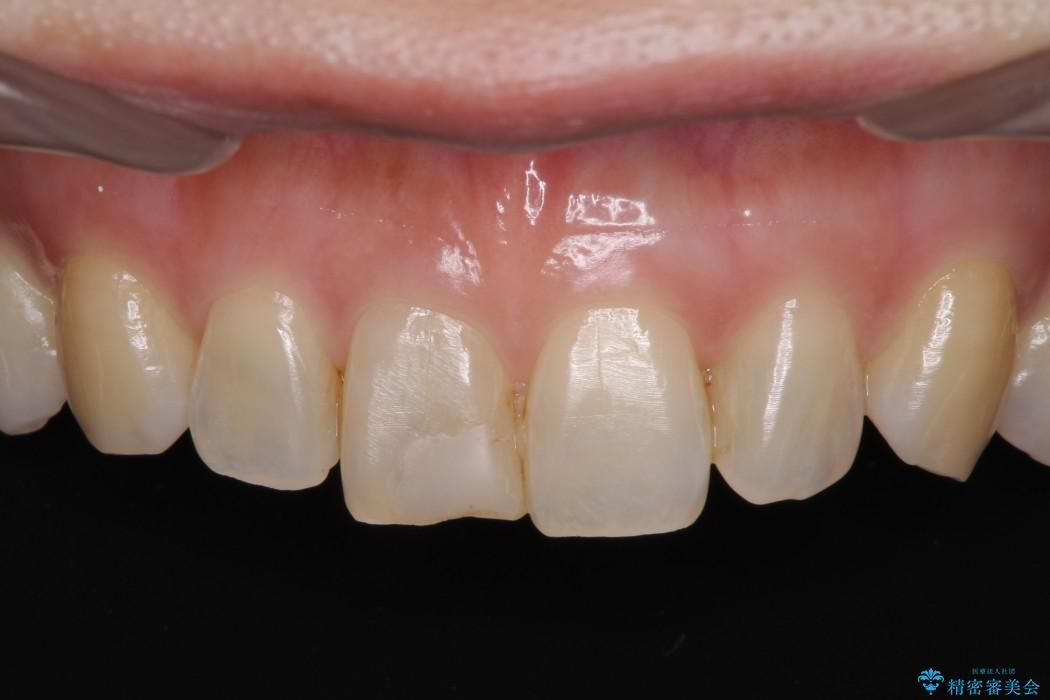 前歯1本のセラミック治療 前