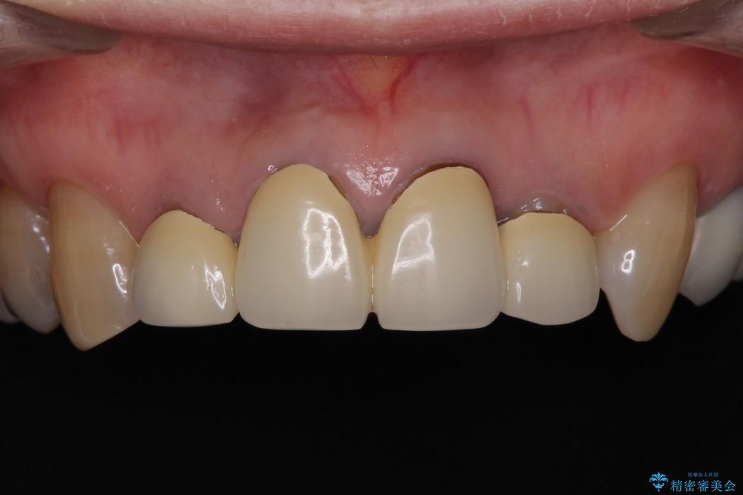 上下前歯4本のセラミック治療 前