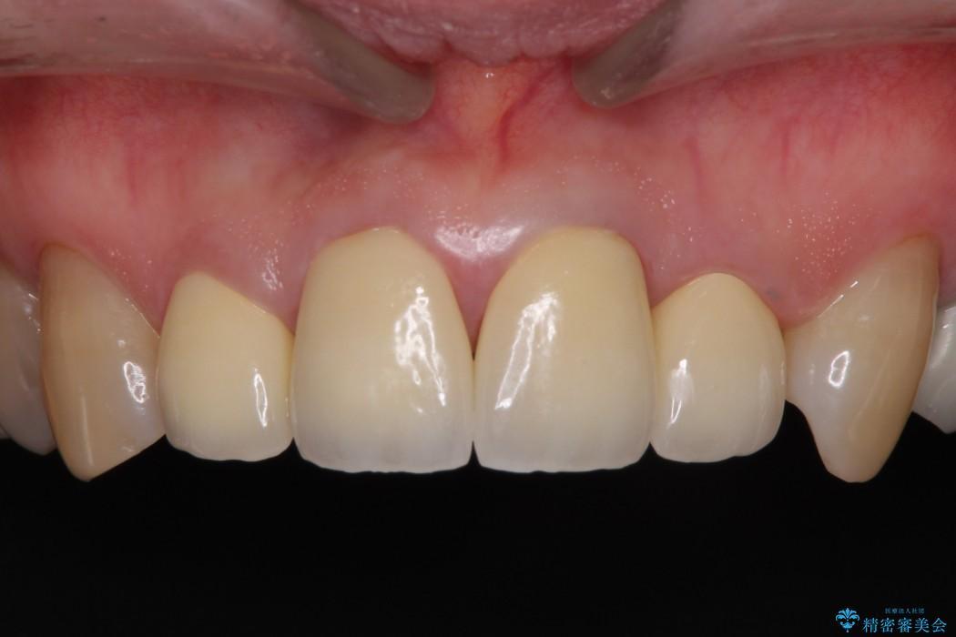 上下前歯4本のセラミック治療 後