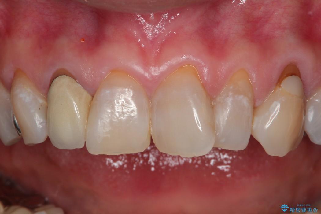 費用を抑えた前歯6本のセラミック治療 前
