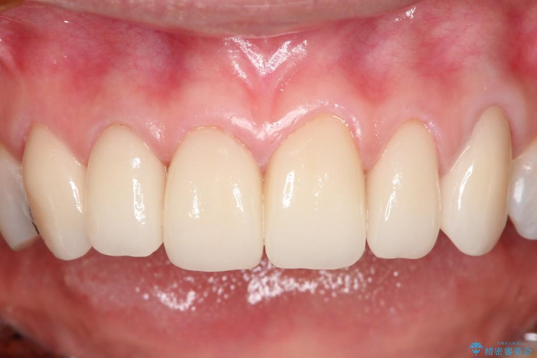 費用を抑えた前歯6本のセラミック治療 後
