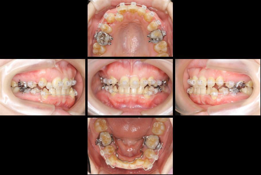 審美装置による八重歯の抜歯矯正治療 前