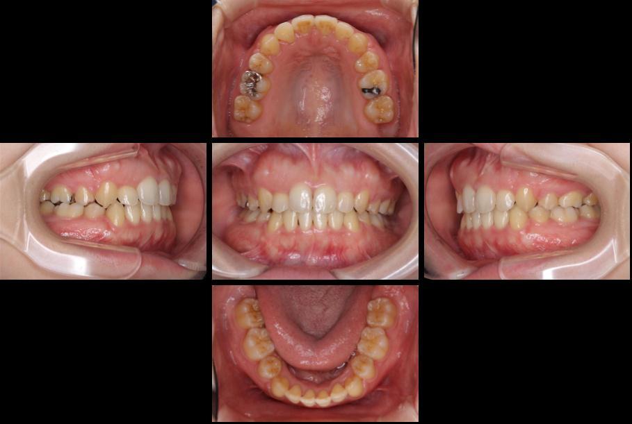 審美装置による八重歯の抜歯矯正治療 後