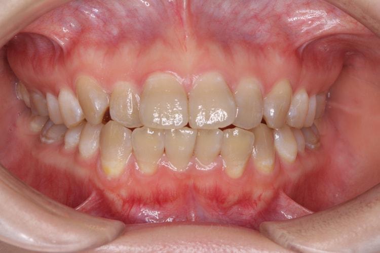 テトラサイクリン歯の上下ホームホワイトニング(変化あり) 前
