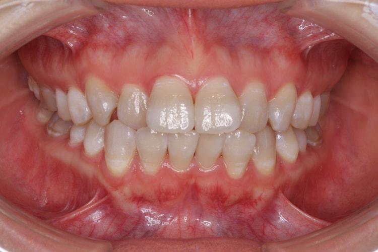テトラサイクリン歯の上下ホームホワイトニング(変化あり) 後