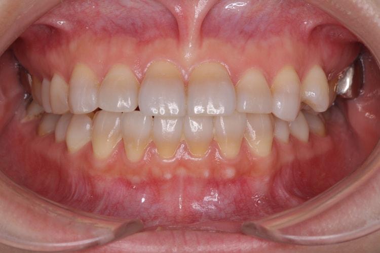 テトラサイクリン歯の上下ホームホワイトニング(変化なし) 前