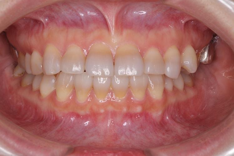 テトラサイクリン歯の上下ホームホワイトニング(変化なし) 後