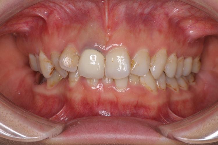 ホワイトニング適応外の歯