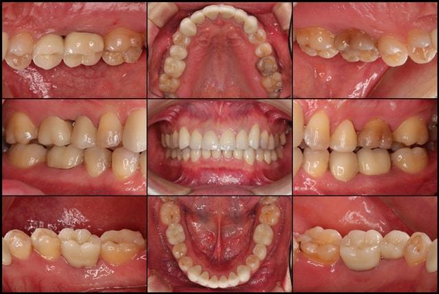 着色歯と歯並びを改善した総合歯科治療 アフター