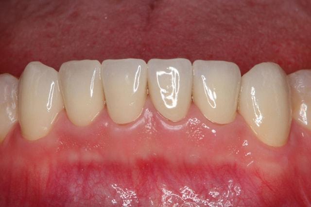 着色歯と歯並びを改善した総合歯科治療 治療後画像