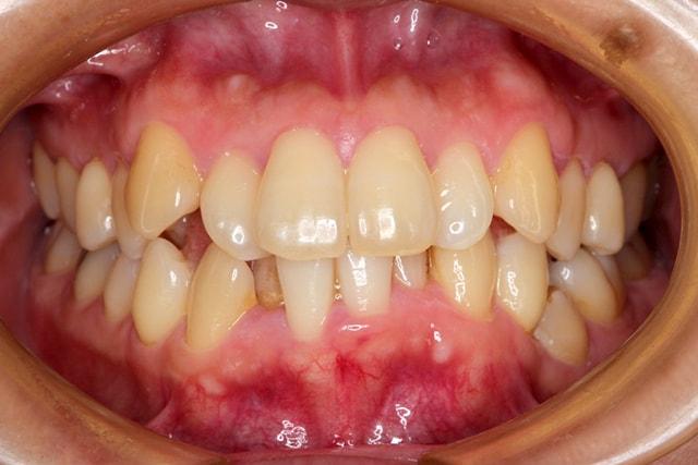 短期間で終了した矯正歯科治療 治療例 治療前