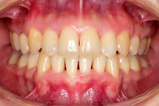 短期間で終了した矯正歯科治療 治療例 アフター
