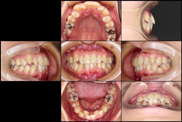 短期間で終了した矯正歯科治療 治療例 治療前画像