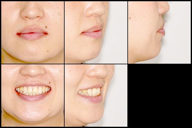 短期間で終了した矯正歯科治療 治療例 治療後画像
