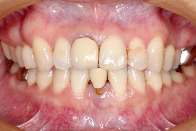 前歯のオールセラミック 治療例 治療前