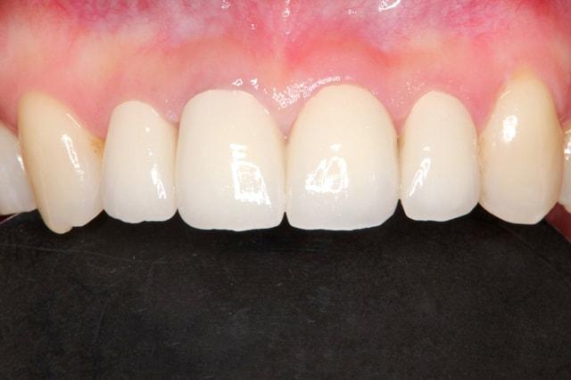 前歯のオールセラミック 治療例 治療後画像