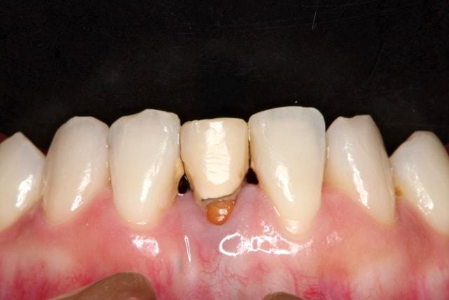 前歯のオールセラミック 治療例 治療前画像