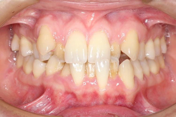 八重歯とクロスバイトの矯正 治療例 治療前