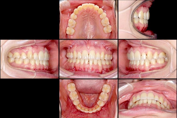 八重歯とクロスバイトの矯正 治療例 治療後画像