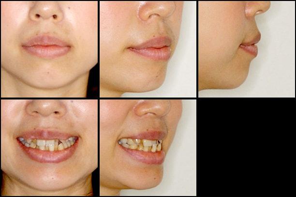 八重歯とクロスバイトの矯正 治療例 治療前画像