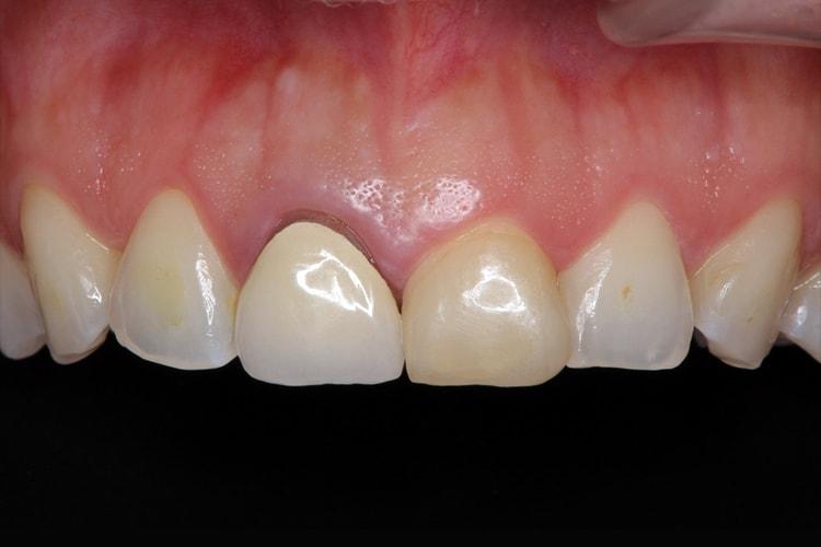 前歯2本のオールセラミック 治療例 ビフォー