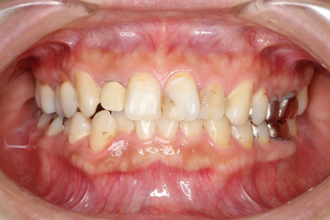 インビザライン矯正治療と前歯のセラミック治療 治療例 治療前
