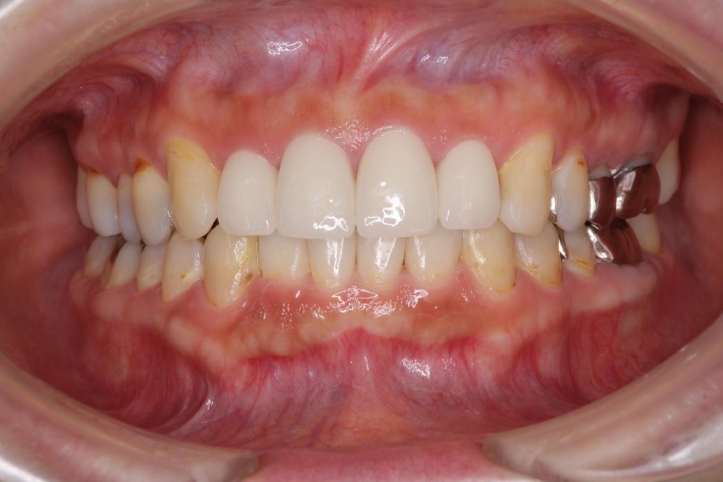 インビザライン矯正治療と前歯のセラミック治療 治療例 アフター