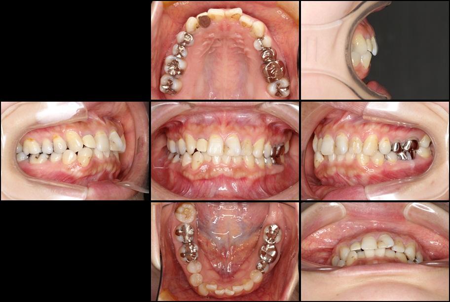 インビザライン矯正治療と前歯のセラミック治療 治療例 治療前画像