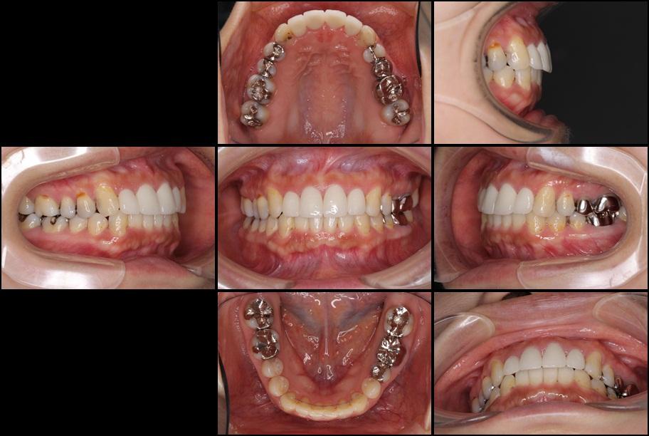 インビザライン矯正治療と前歯のセラミック治療 治療例 治療後画像