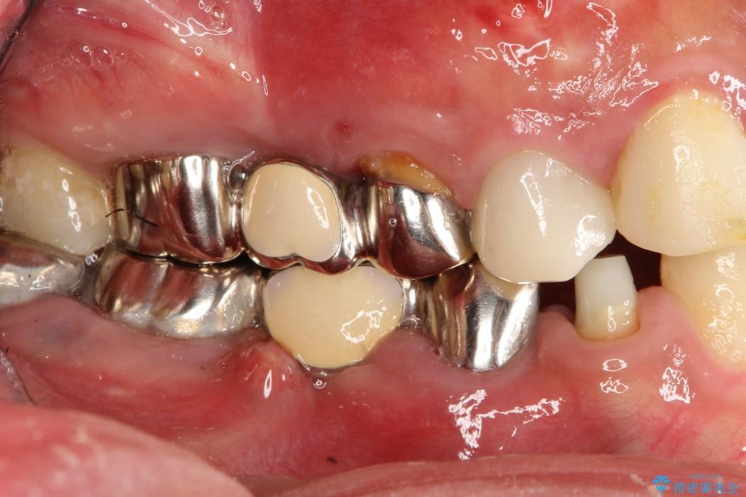 奥歯のインプラント治療 治療例 ビフォー