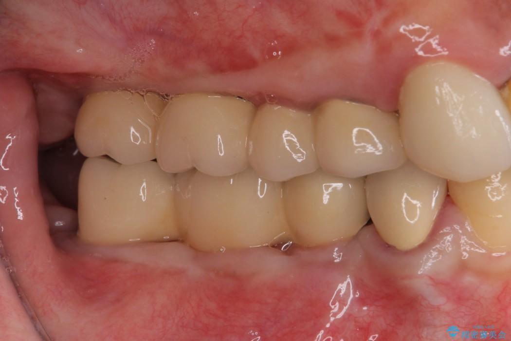 奥歯のインプラント治療 治療例 アフター