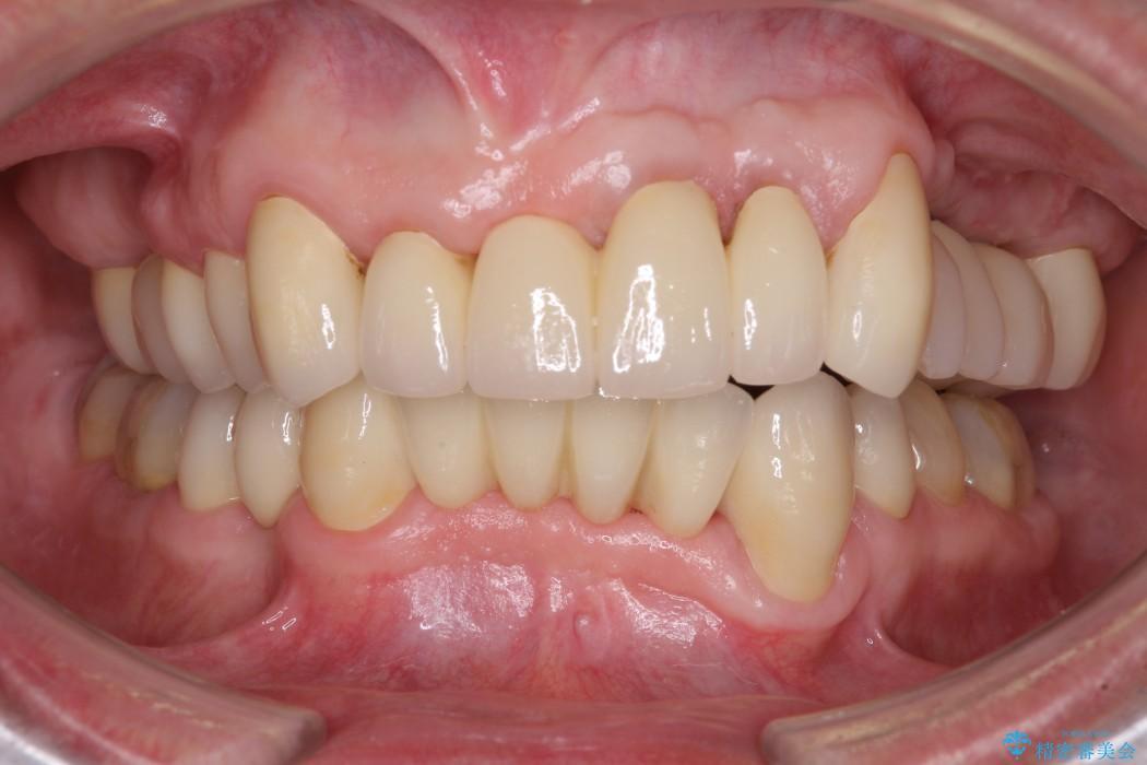 ほぼ全歯のインプラント、ブリッジ、セラミック治療例 アフター
