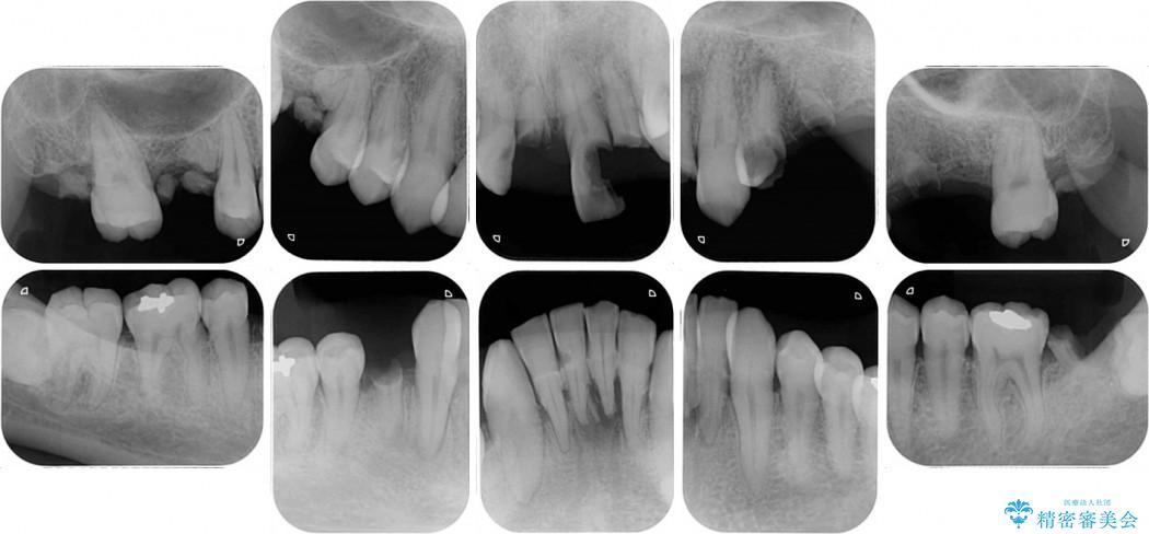 ほぼ全歯のインプラント、ブリッジ、セラミック治療例 治療前画像