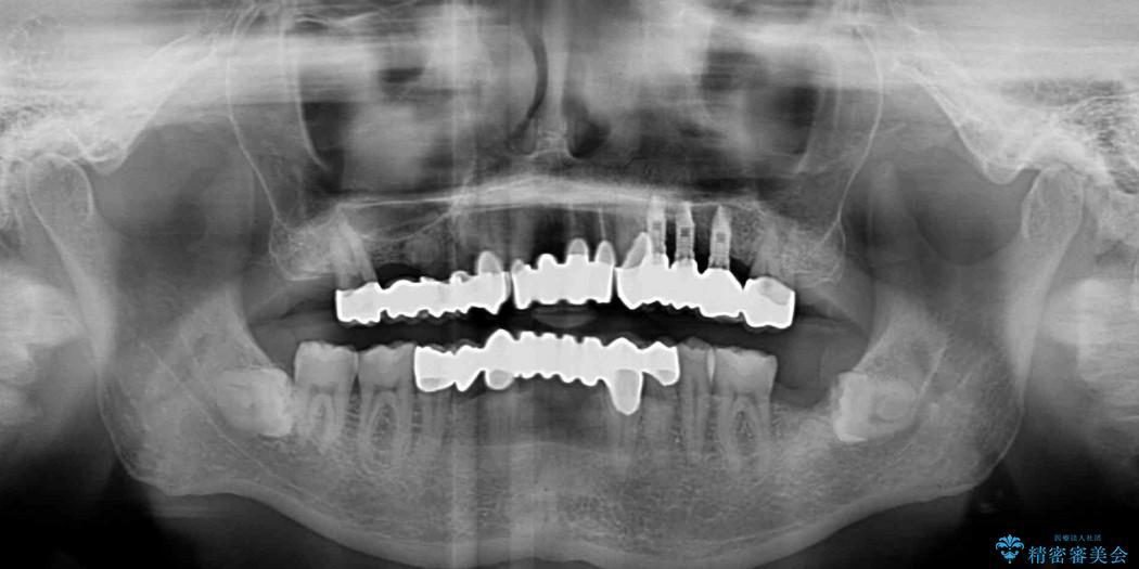 ほぼ全歯のインプラント、ブリッジ、セラミック治療例 治療後画像