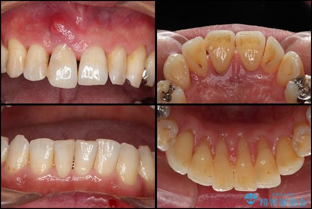 歯周病治療 歯槽骨の再生治療 治療例 治療前画像