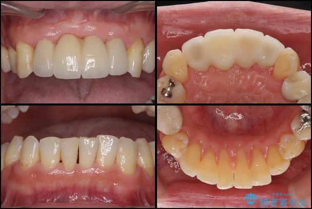 歯周病治療 歯槽骨の再生治療 治療例 治療後画像