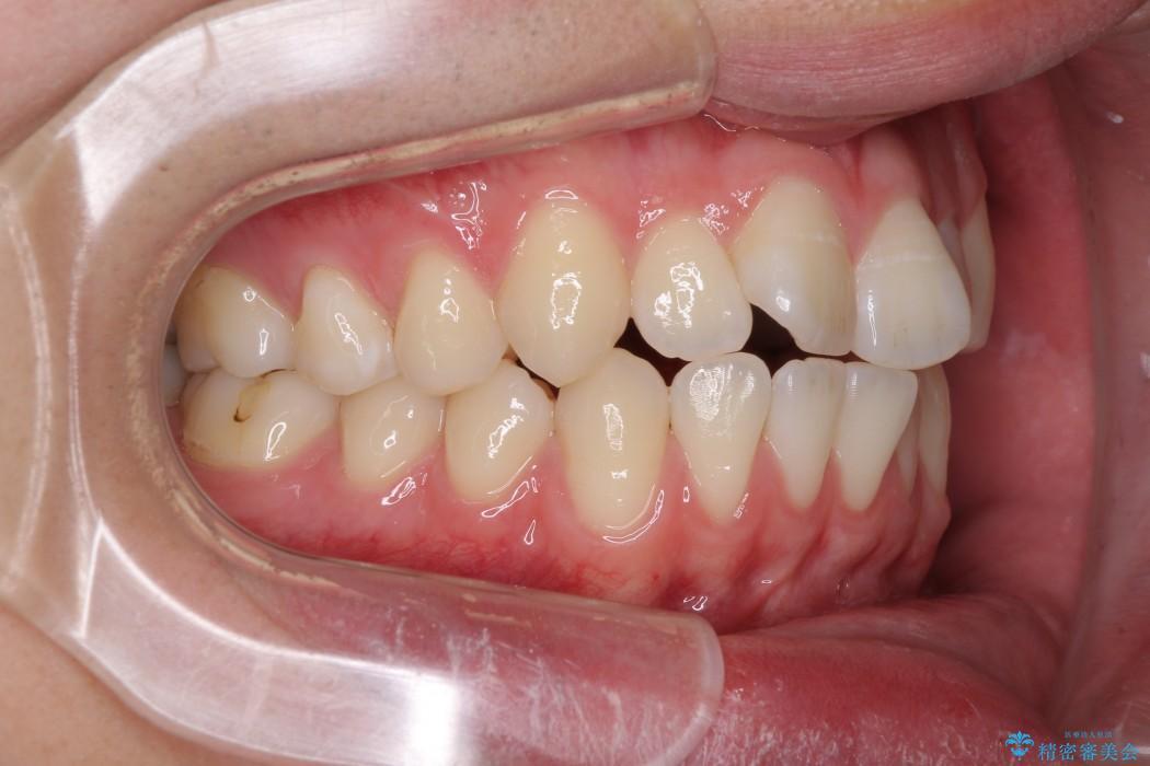 前歯のインビザラインによる短期間矯正 治療前
