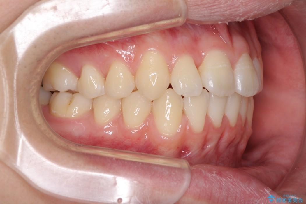 前歯のインビザラインによる短期間矯正 アフター