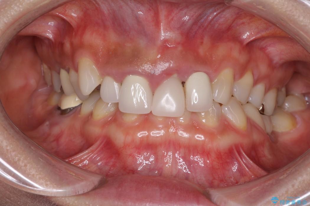 前歯の総合歯科治療(矯正、歯周病、セラミック)の治療例 治療前