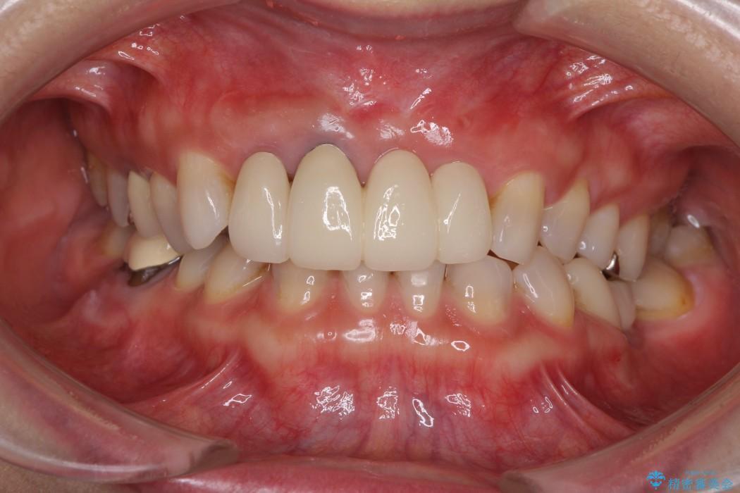 前歯の総合歯科治療(矯正、歯周病、セラミック)の治療例 アフター