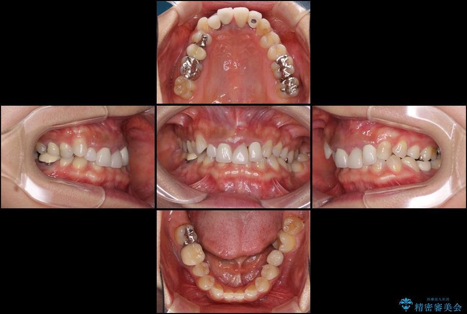 前歯の総合歯科治療(矯正、歯周病、セラミック)の治療例 治療前画像
