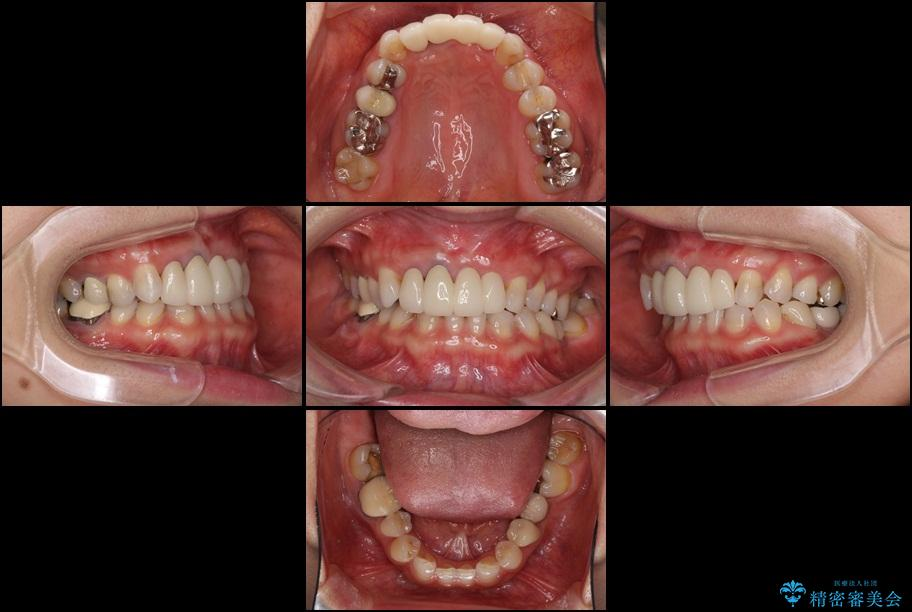 前歯の総合歯科治療(矯正、歯周病、セラミック)の治療例 治療後画像