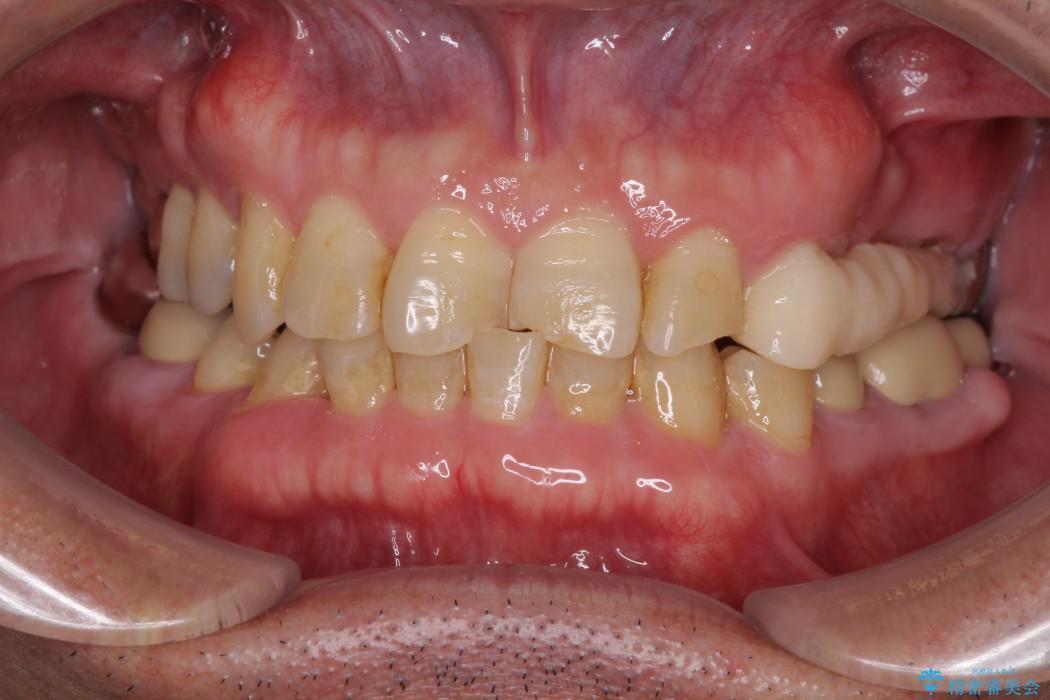 インビザラインliteによる切端咬合の歯列矯正 治療例 治療前