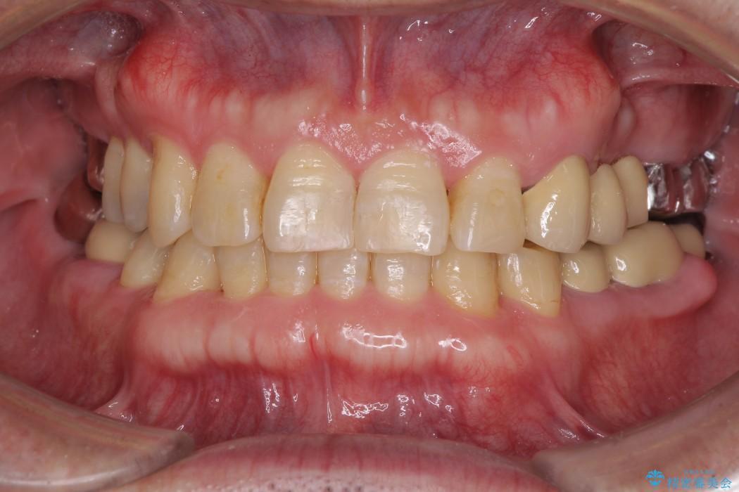 インビザラインliteによる切端咬合の歯列矯正 治療例 アフター
