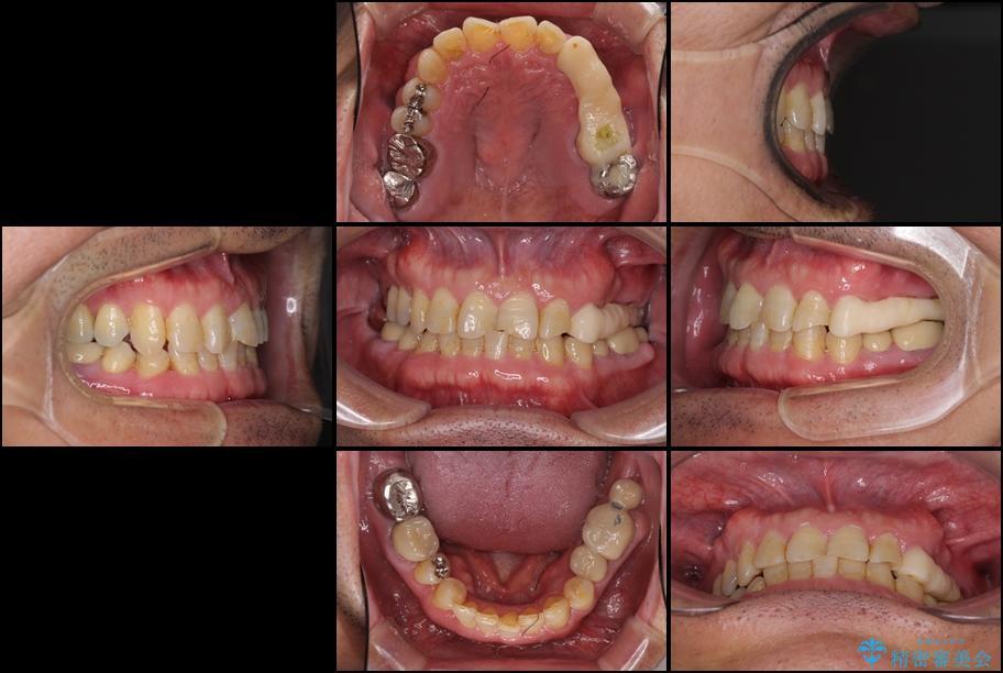 インビザラインliteによる切端咬合の歯列矯正 治療例 治療前画像